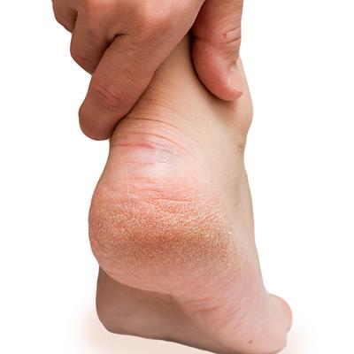 fissures au talons et callosités aux pieds