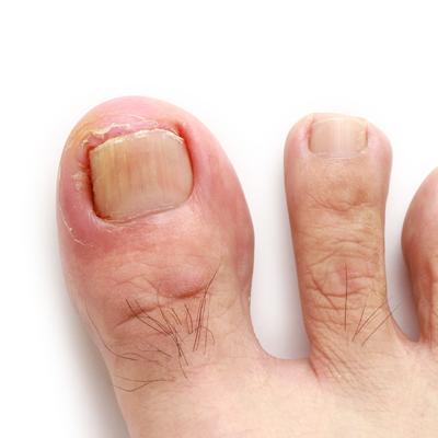 Ongles incarnés - soins des pieds